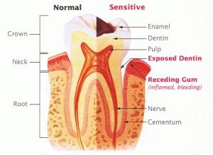 tooth-sensitivity2